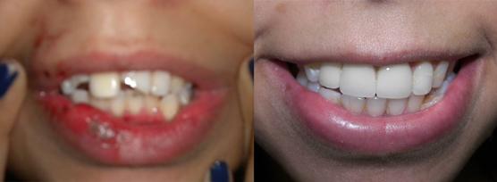 Mang đến một hàm răng chắc khỏe, sáng bóng