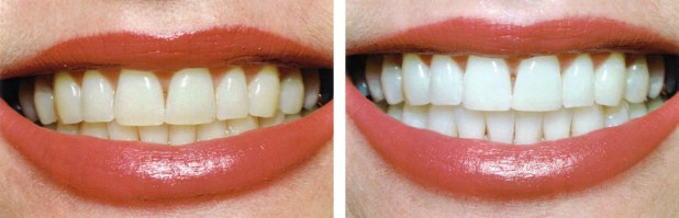 before-and-after-teeth-whitening-2