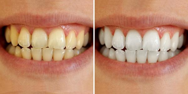 Nên ăn gì sau khi tẩy trắng răng