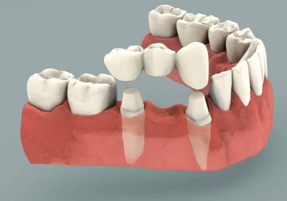 Mất hai răng cửa, trồng lại như thế nào là tốt nhất?