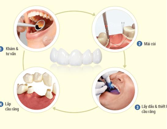 quy trình bọc răng sứ