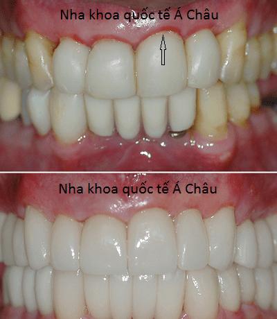 Cách khắc phục viêm lợi sau khi bọc răng sứ