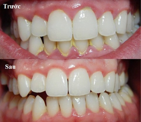 Kết quả hình ảnh cho Lấy cao răng