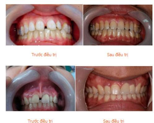 trường hợp răng xấu có thể niềng răng