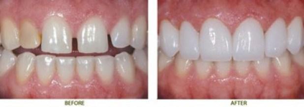 khắc phục răng thưa