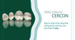 Răng toàn sứ Cercon là gì?