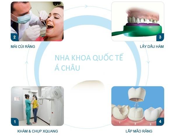 Quy-trình-làm-răng-sứ-từ-A-Z-theo-chuẩn-quốc-tế-2