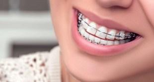 Những sự cố có thể gặp khi niềng răng bằng mắc cài