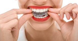 Thế nào là răng sứ tốt?