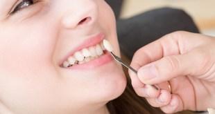 Thế Nào là răng sứ đẹp?