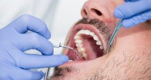 Nhổ 4 răng khôn một lúc có được không