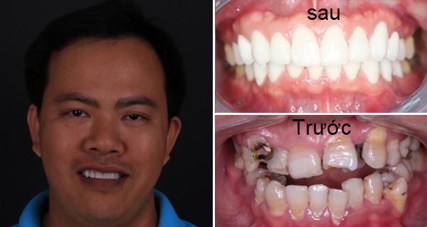 Bọc răng sứ thẩm mỹ bao nhiêu tiền