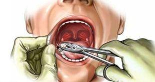 Nhổ răng khôn có được bảo hiểm không?