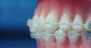 Niềng răng mắc cài pha lê giá bao nhiêu?