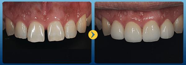Trồng răng vĩnh viễn bằng phương pháp bọc sứ