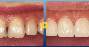 Tìm hiểu về men răng, làm sao để bảo vệ men răng cho hàm răng khỏe đẹp