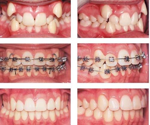 Chỉnh 1 răng lệch mất khoảng bao lâu?1