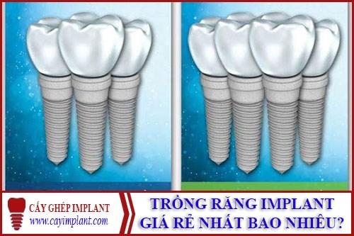 trong rang implant gia re la bao nhieu 1 - Trồng răng implant loại nào rẻ nhất hiện nay?