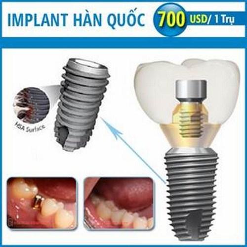 trong rang implant gia re la bao nhieu 4 - Trồng răng implant loại nào rẻ nhất hiện nay?