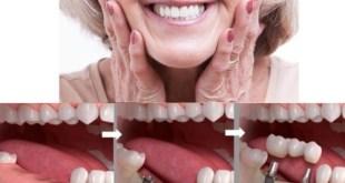 Trồng răng cửa giá bao nhiêu?