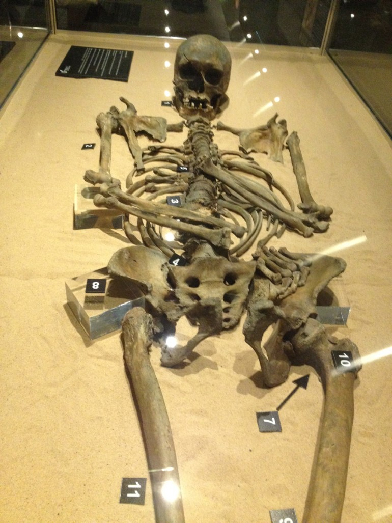 Female skeleton discovered in the excavations at Coppergate. She was around 46 old and 5ft 2in, robustly built and possibly used crutches.