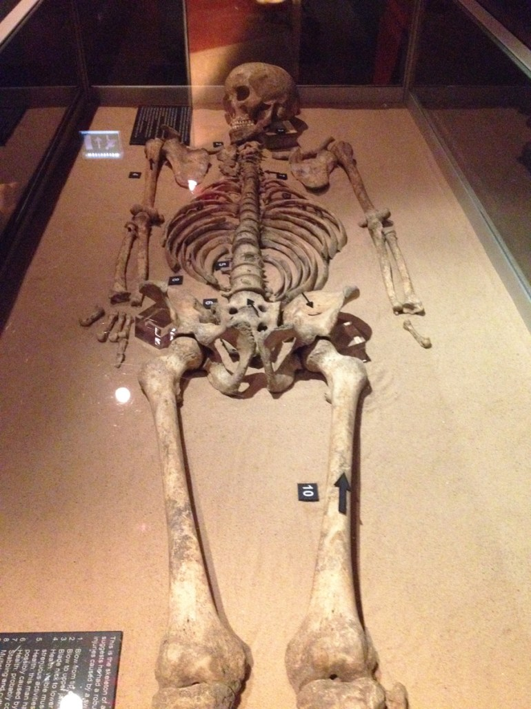 Battle skeleton at Jorvik with 16 visible injuries. Its possible he died at the Battle of the Standard near Northallerton.