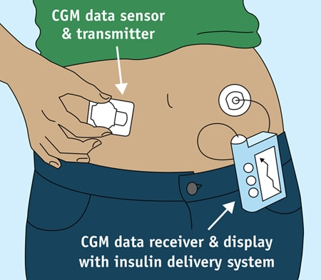 Drawing of a continuous glucose monitor. A transmitter patch on the belly covers a tiny glucose sensor under the skin. The transmitter sends data to a small receiver with a viewing screen, which is clipped to a belt. The CGM receiver shown here is part of an insulin pump.