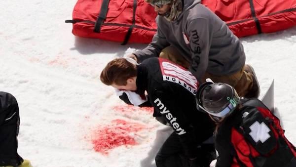 Imágenes espeluznantes de la caída de Shaun White
