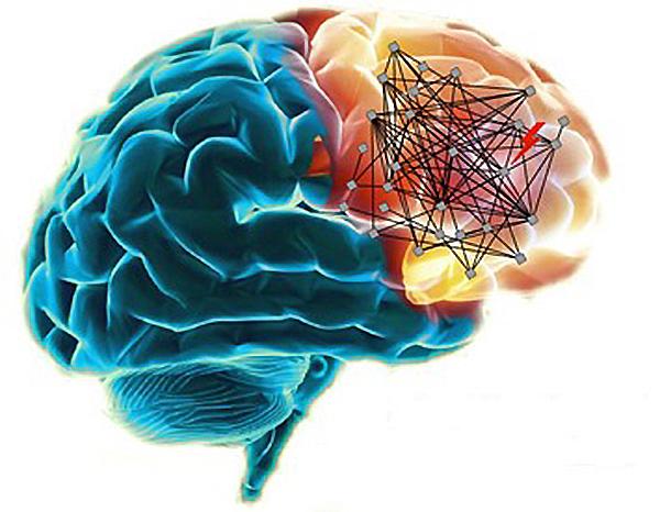 Mutated Genes In Schizophrenia Map To Brain Networks