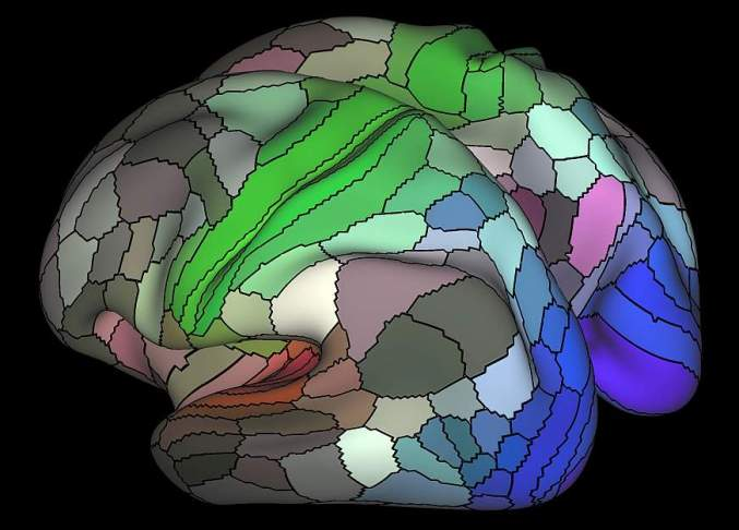 Image of a brain map