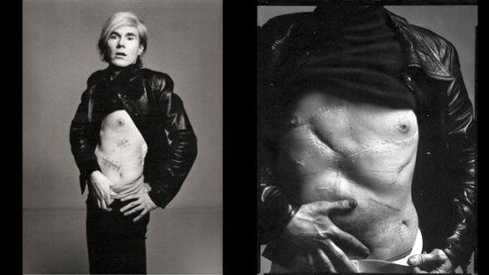Χρονολόγιο, Andy Warhol & Valerie Solanas, Βαλερί Σολάνας & Άντι Γουόρχολ, ΤΟ BLOG ΤΟΥ ΝΙΚΟΥ ΜΟΥΡΑΤΙΔΗ, nikosonline.gr