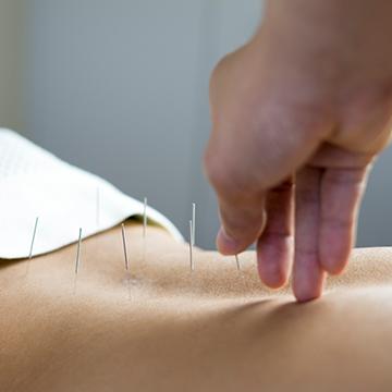 Prendre rendez-vous avec un acupuncteur