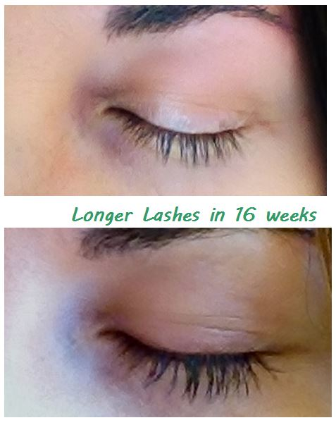 trial result before and after using the serum for growing eyelashes for 16 weeks