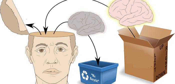 beyin nakli