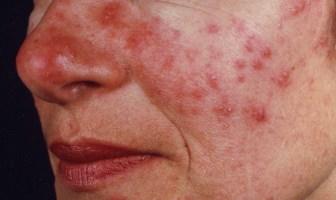 Roza Hastalığı (Gül) Nedir? Roza Belirtileri - Teşhis ve Tedavisi