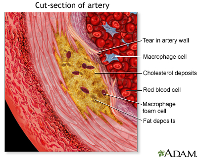 Enlarged view of atherosclerosis