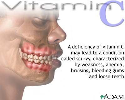 Vitamin C deficit