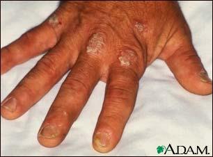 Psoriasis: MedlinePlus Medical Encyclopedia