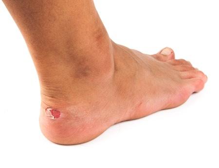 Une blessure sur pied diabétique