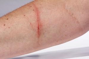 Une personne victime d'une coupure au bras