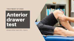 Anterior Drawer Test for ACL Injury