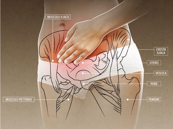 dolore pelvico cronico e bruciore