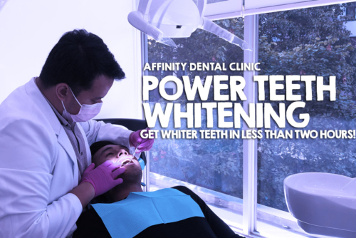 Power Teeth Whitening – Get whiter teeth in less than two hours!