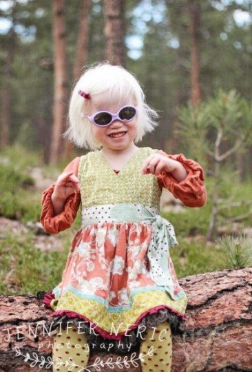 albinism2