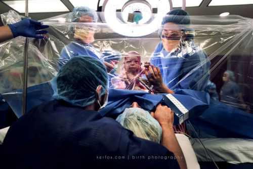neonato da cesareo