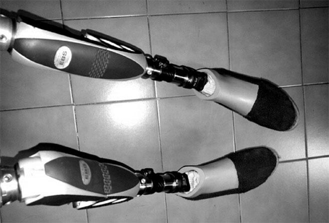 protesis-de-Zarevitz-Camacho