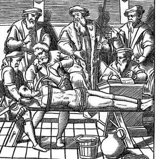3 Tortura dell'acciaio fuso - Torture medioevali