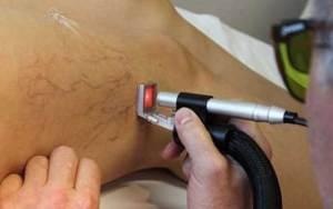 laserterapia delle vene varicose