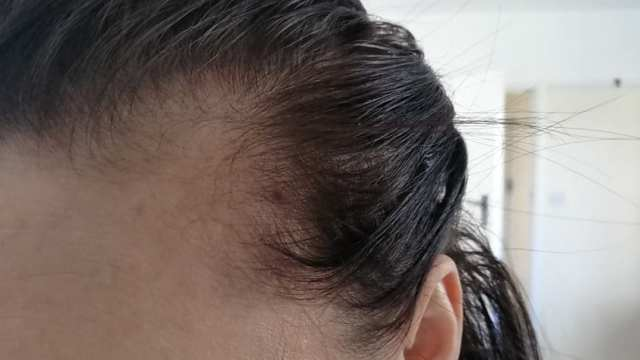 Hair loss, extreme shedding at the temple