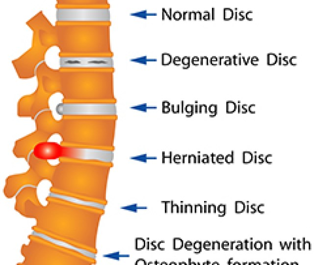 Within The Spinal Column There Are Discs Between Each Vertebrae These Discs Are The Spines Shock Absorbers And Have Two Layers